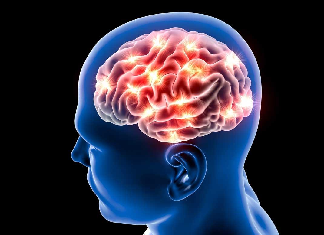 Možganska kap je v Sloveniji dvakrat pogostejša, kot v drugih državah