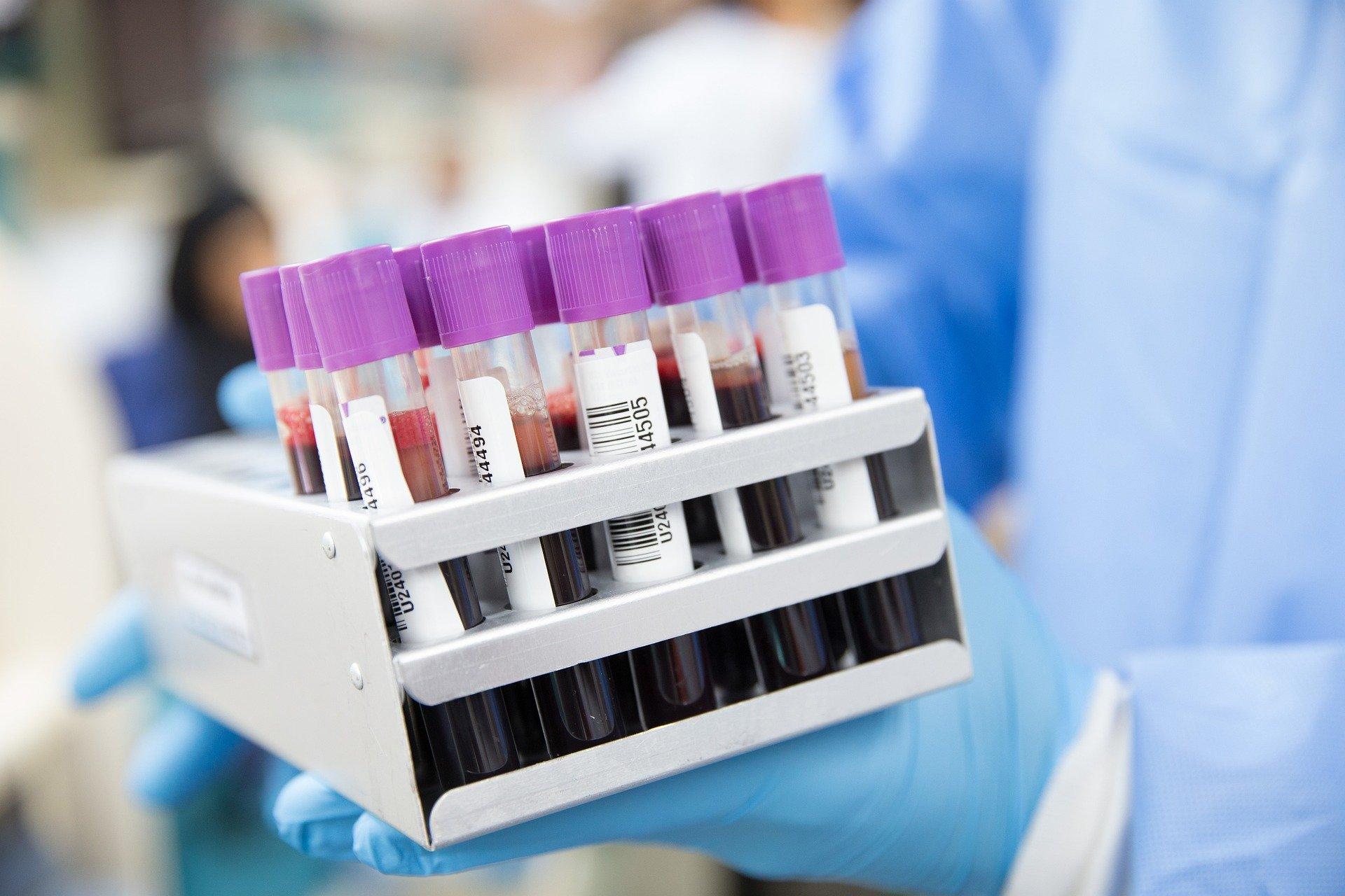Zaloge krvi v Sloveniji pojenjajo, SLS poziva svoje člane in simpatizerje k darovanju