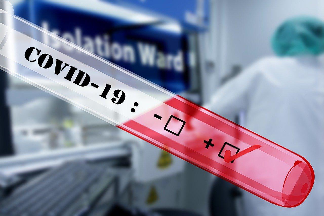 Do danes v Sloveniji potrjenih 480 okužb s covid-19 in 4 smrtne žrtve