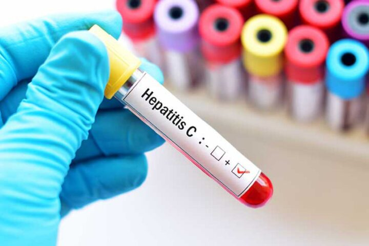 Hepatitis ima pet obrazov