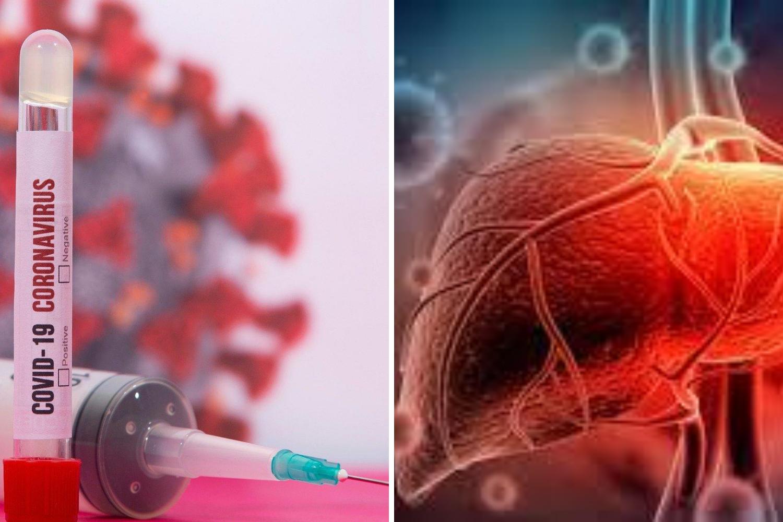 V senci covida-19 zmanjkuje denarja za raziskave drugih bolezni