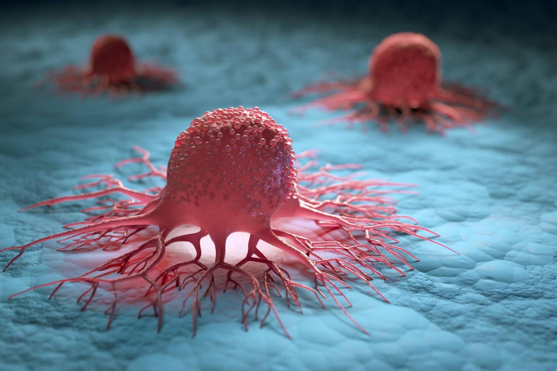 Najpogostejše oblike raka v Sloveniji in kako jih prepoznamo