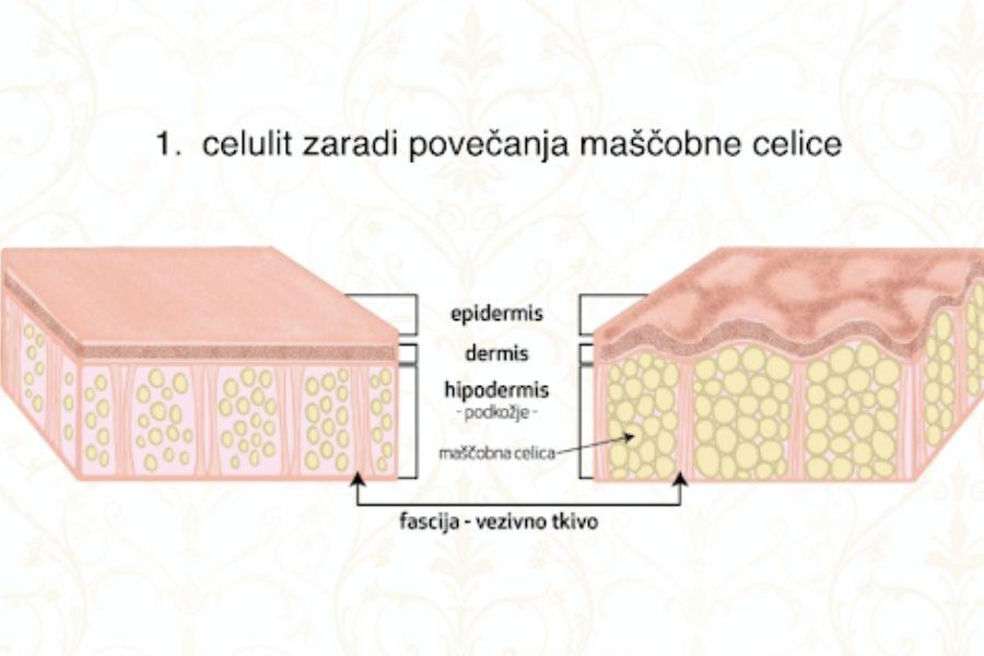 Pod kožo so maščobne celice, ki se povečajo. Pod njimi je oslabela mišica, fascija, ki je zgrajena kot pajkova mreža, ki naj bi država vse skupaj, se raztrga - in tako nastane celulit. Vir slike: Maderoterapija.